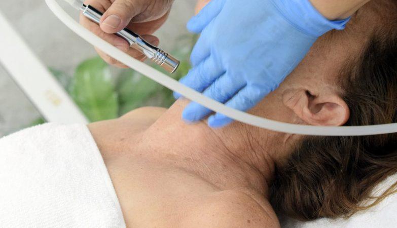 Mezoterapia igłowa - zabieg zbawienny dla skóry